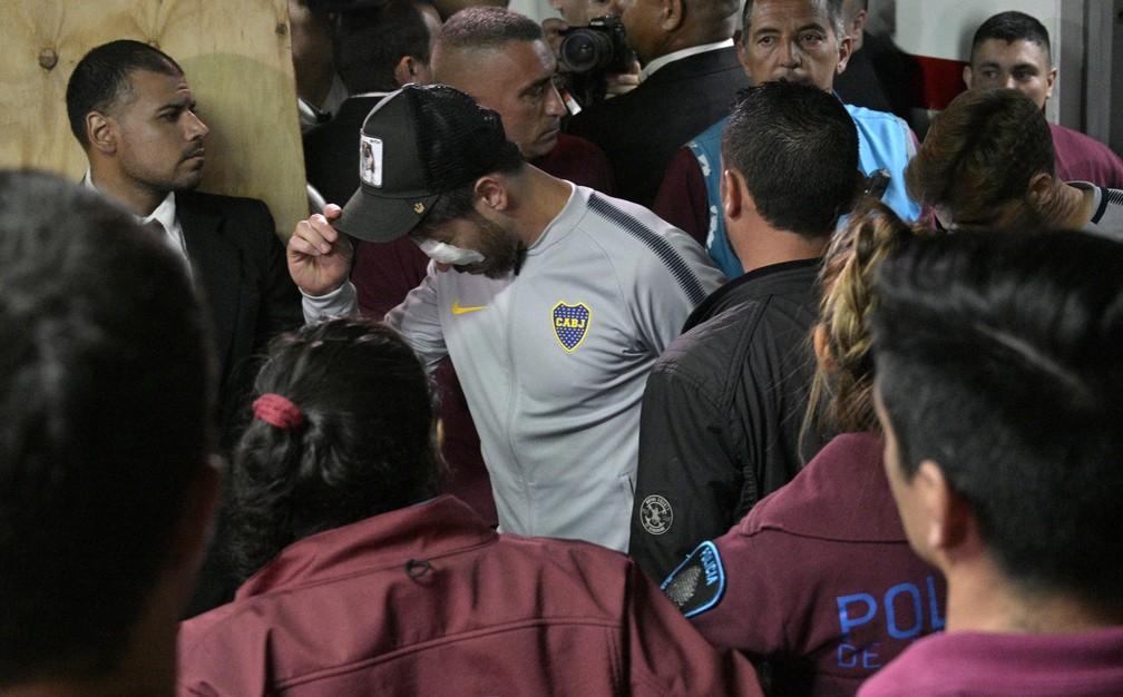 Pérez voltando ao estádio depois de ser atendido no hospital — Foto: Juan MABROMATA / AFP