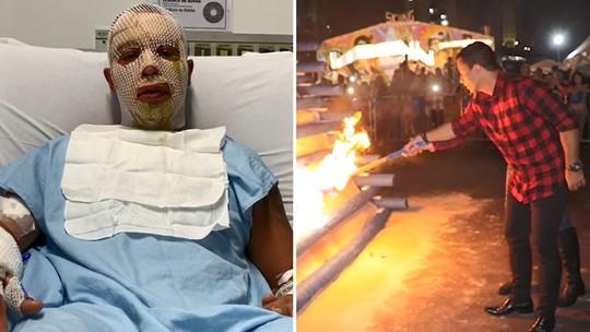'Poderia ter sido fatal', diz prefeito de Osasco após sobreviver a explosão em fogueira de festa junina