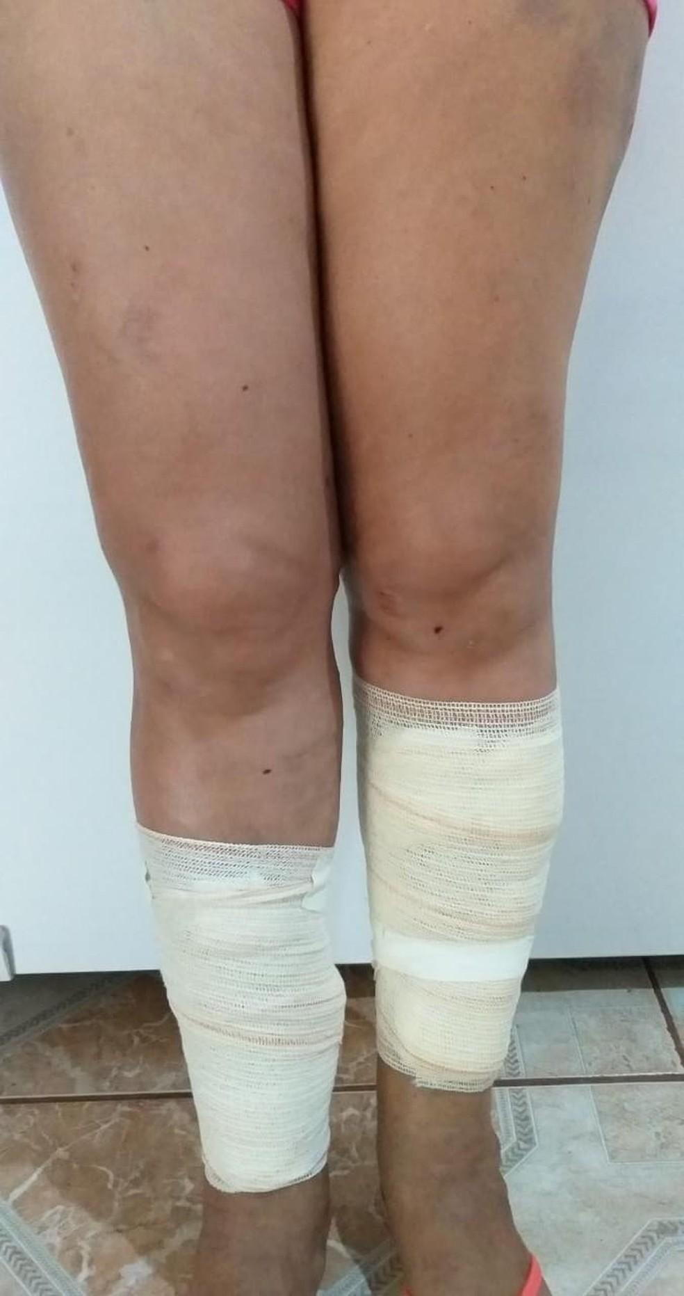 Vítima foi socorrida ao hospital municipal e precisou tomar vacinas.  — Foto: Débora Soares/Arquivo pessoal