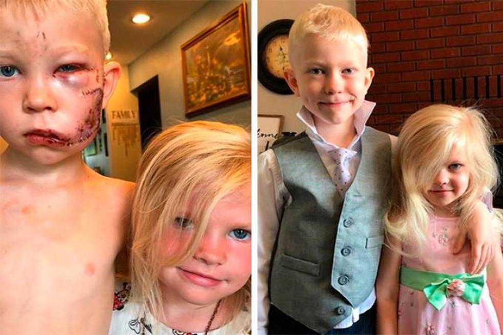 Bridger Walker e a irmã antes e depois do incidente  — Foto: Reprodução/Instagram