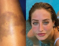 Bruna Griphao mostra hematomas após ser mordida por cachorro