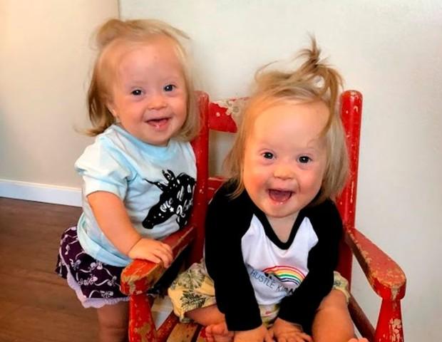 Charlotte e Annette têm 1 ano (Foto: Reprodução/Mirror)