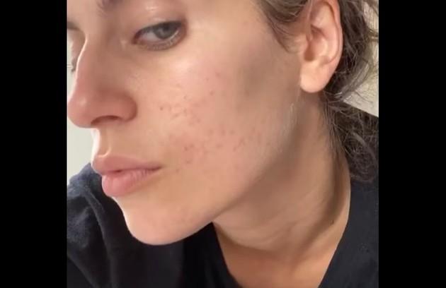 """Protagonista da série """"Me chama de Bruna"""", Maria Bopp mostrou a sua pele com acnes e disse: """"Resultado do combo pandemia + quarentena + caos político...""""  (Foto: Reprodução/Instagram)"""