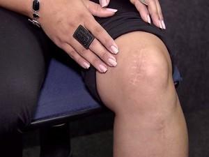 Tatiane exibe marcas da cirurgia feita no joelho errado (Foto: Reprodução/Tv Tribuna)