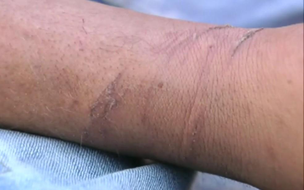 Denúncia do MPF afirma que jovem foi torturado por policiais militares Goiás — Foto: Reprodução/ TV Globo