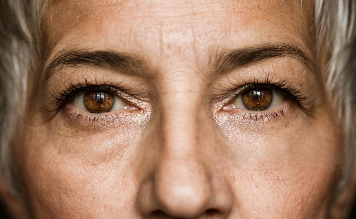 Apesar de ter um tratamento eficiente, o glaucoma é a maior causa de cegueira irreversível do mundo