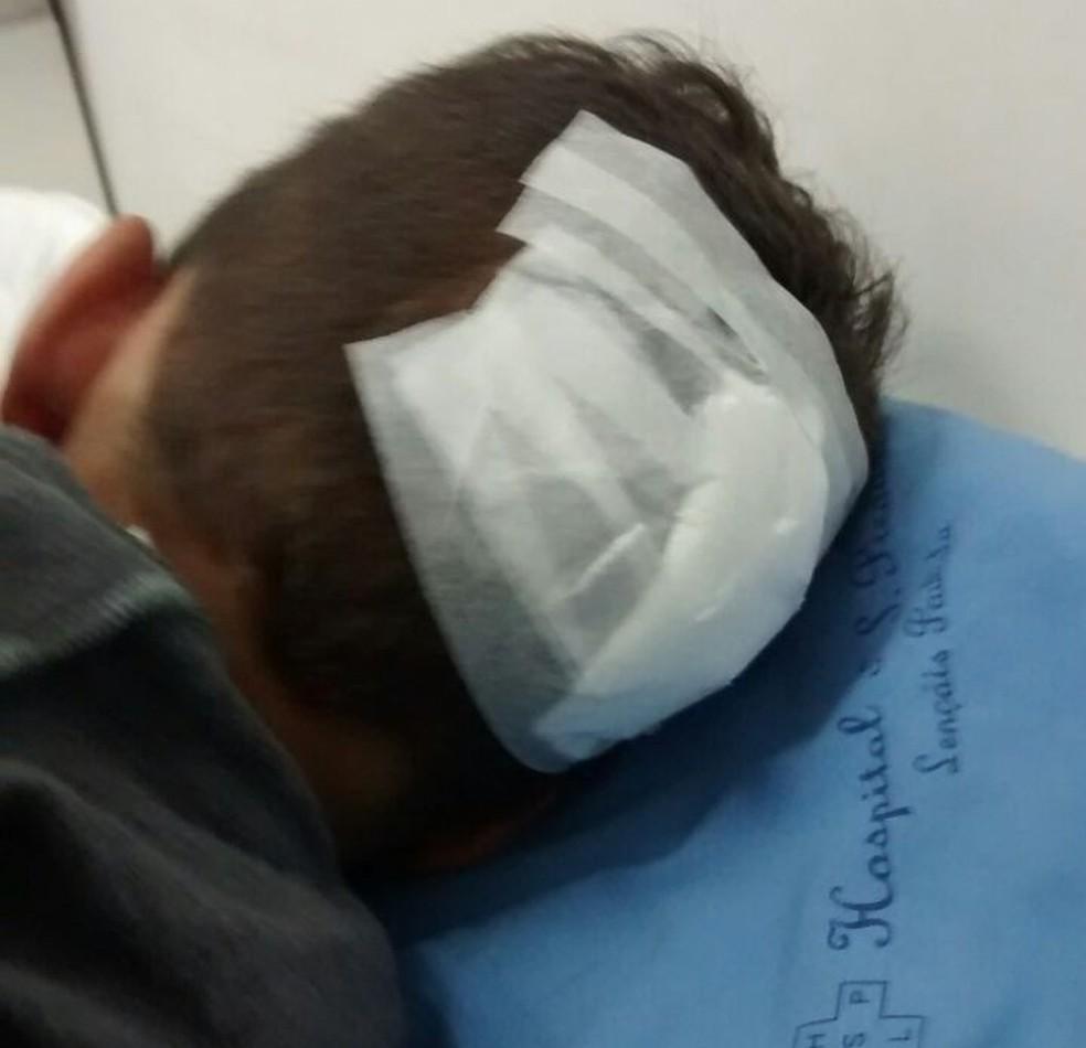 Menino espancado em Lençóis Paulista precisou levar 10 pontos na cabeça para fechar corte  (Foto: Jornal Sabadão do Povo / Divulgação )