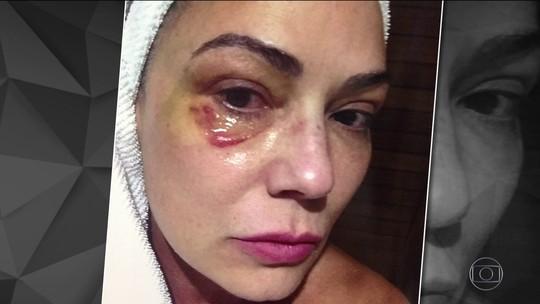 Luiza Brunet chega a fórum para julgamento do caso de agressão de ex