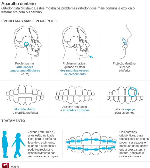 Arte Aparelho Dentário Bem Estar (Foto: Arte/G1)