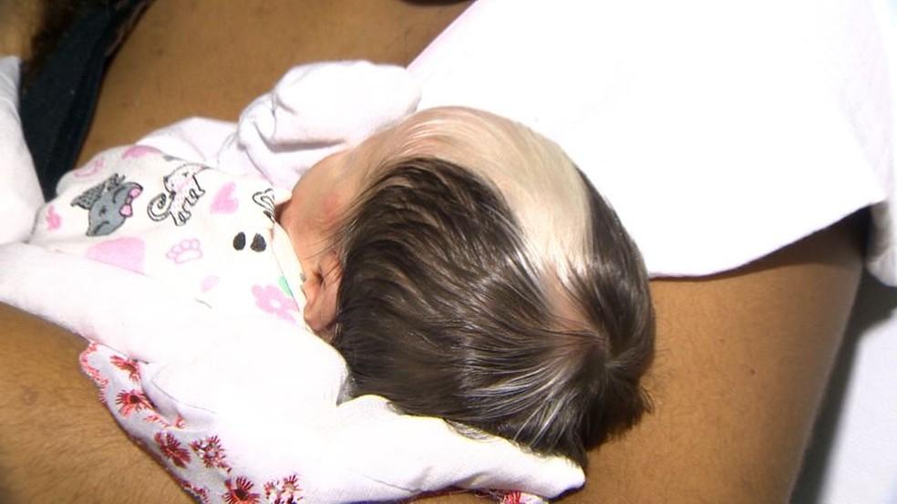 Hellen nasceu com uma mecha de cabelo branca — Foto: Paulo Cordeiro/TV Gazeta
