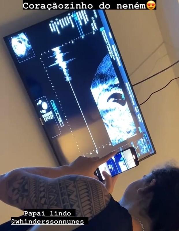 Whindersson Nunes se emociona com ultrassom do filho (Foto: Reprodução/Instagram)