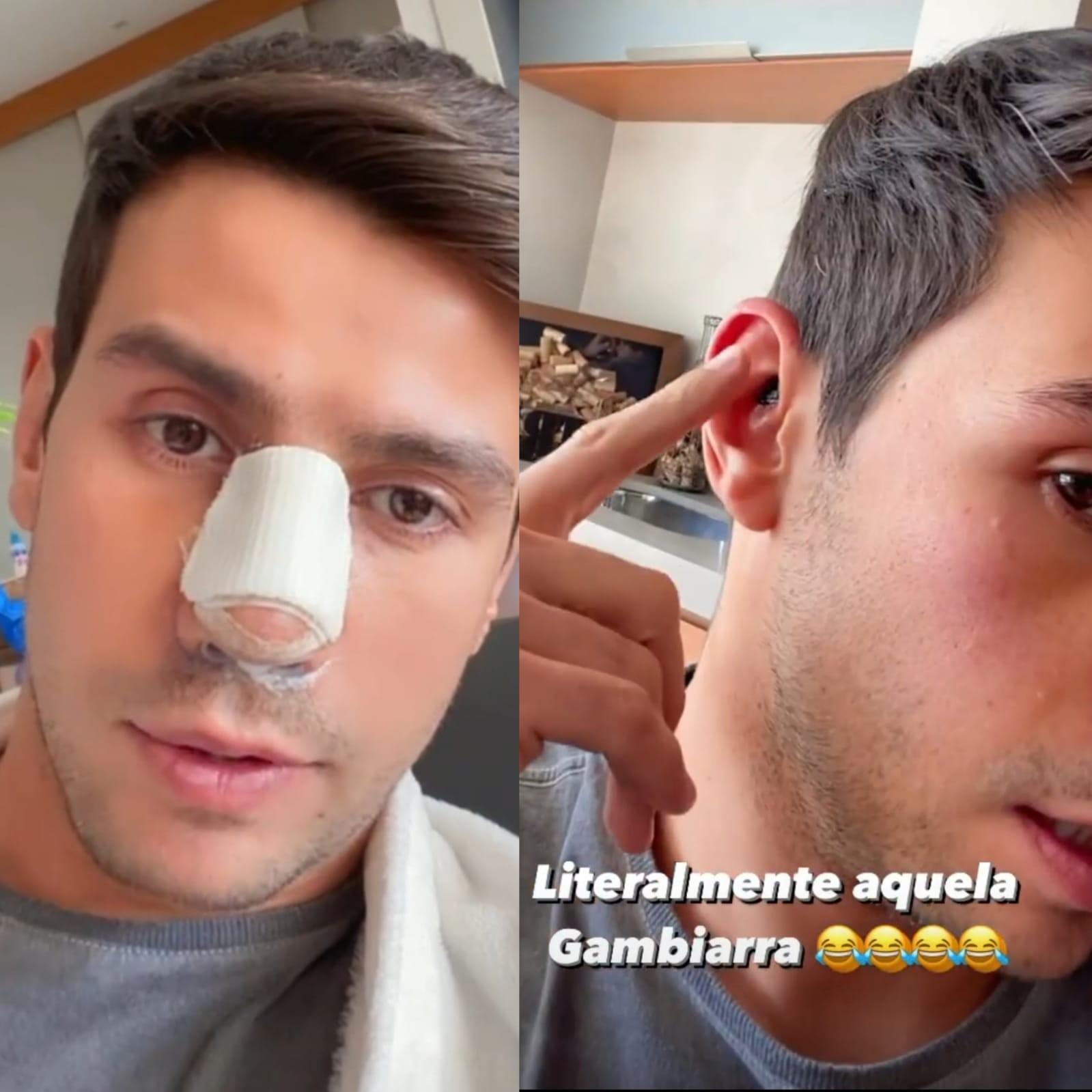Mariano sou cartilagem de orelha e costelas para repara nariz em cirurgia (Foto: Reprodução)