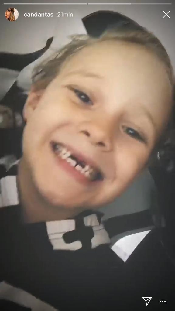 Davi Lucca perde dente de leite (Foto: Instagram/Reprodução)