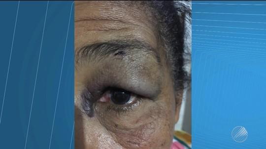 Vendedor que deu soco em idosa por R$ 40 é denunciado por outra vítima após ter invadido casa para fazer cobrança