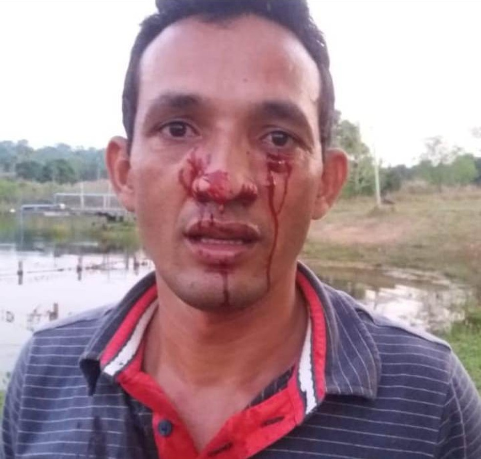 Moisés Rodrigues foi atacado no rosto por sucuri de 3 metros (Foto: Arquivo Pessoal)
