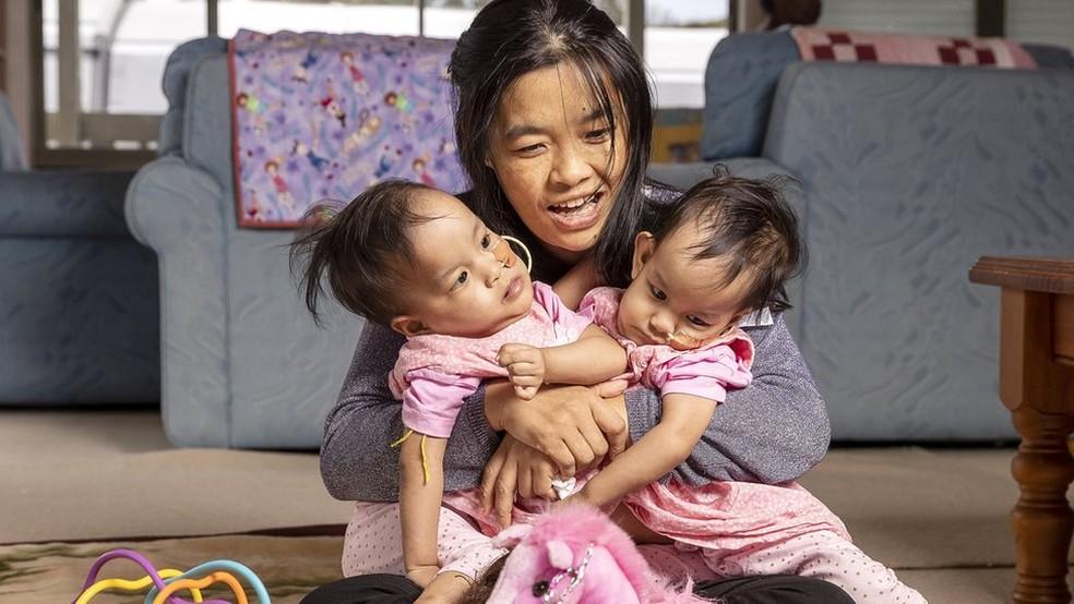 Com ajuda de instituição de caridade, mãe e filhas foram do Butão à Austrália para fazer cirurgia — Foto: EPA/BBC