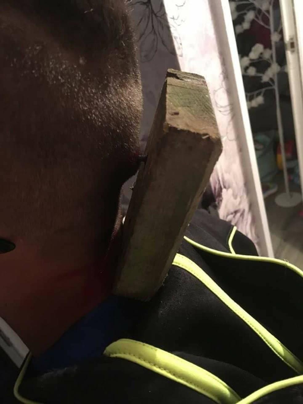 Prego ficou preso à cabeça do garoto junto ao pedaço de madeira (Foto: Reprodução / Facebook/ Natasha Chambers)