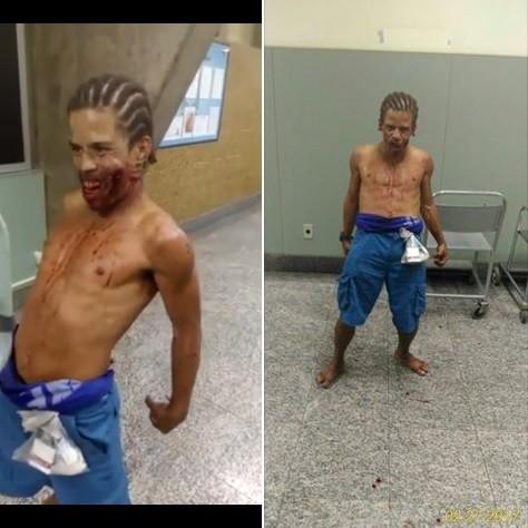 O ferido 'dançou' em corredor de hospital público