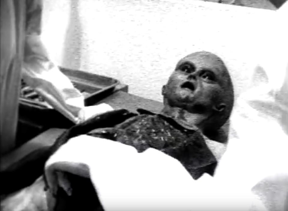 Uma cena do vídeo lendário mostrando a autópsia do alienígena (Foto: Reprodução)