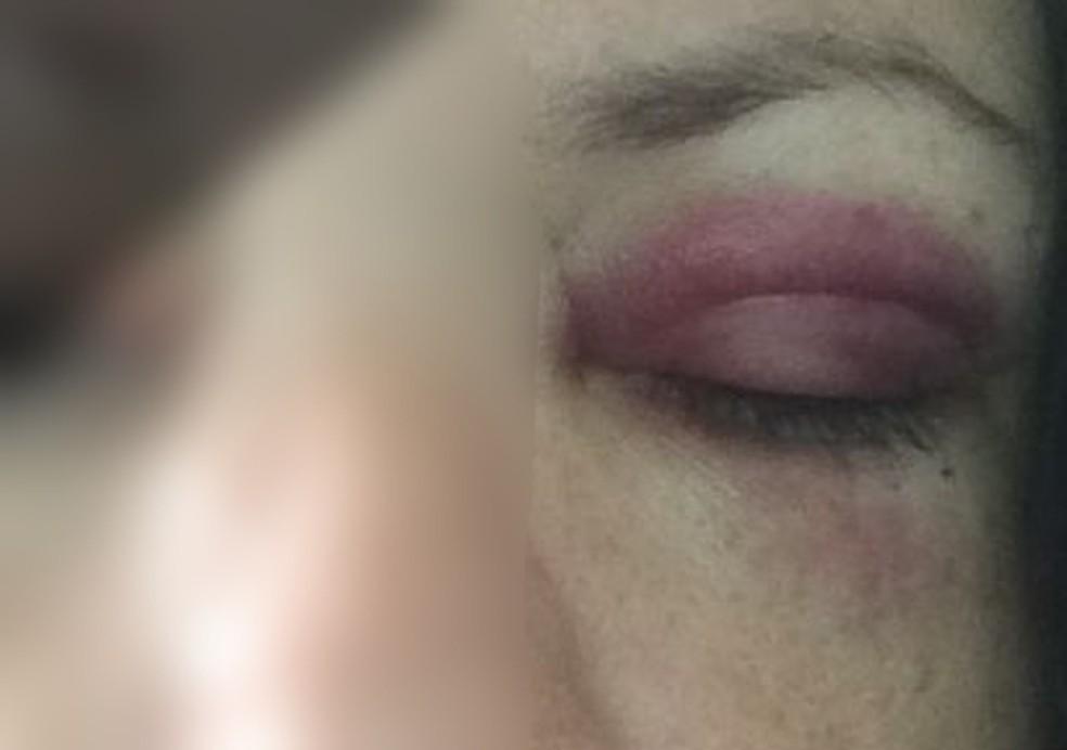 Mulher postou a foto das marcas das agressões que sofreu em dezembro do ano passado — Foto: Arquivo pessoal