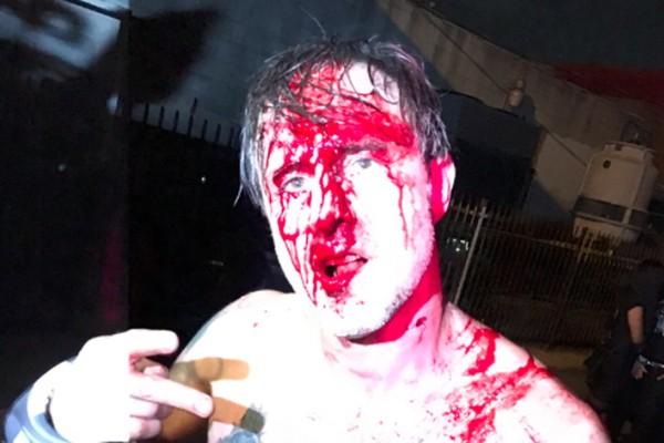 O ator David Arquette ensanguentado após seu confronto com o lutador profissional Nick Gage (Foto: Twitter)