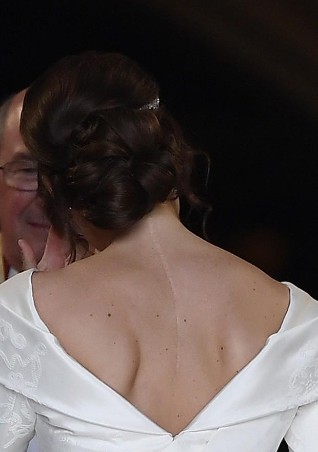 A cicatriz nas costas da Princesa Eugenie é por causa de uma cirurgia de escoliose (Foto: Getty Images)