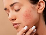 Desafio do Roacutan: Dermatologista alerta riscos da medicação que virou febre no TikTok