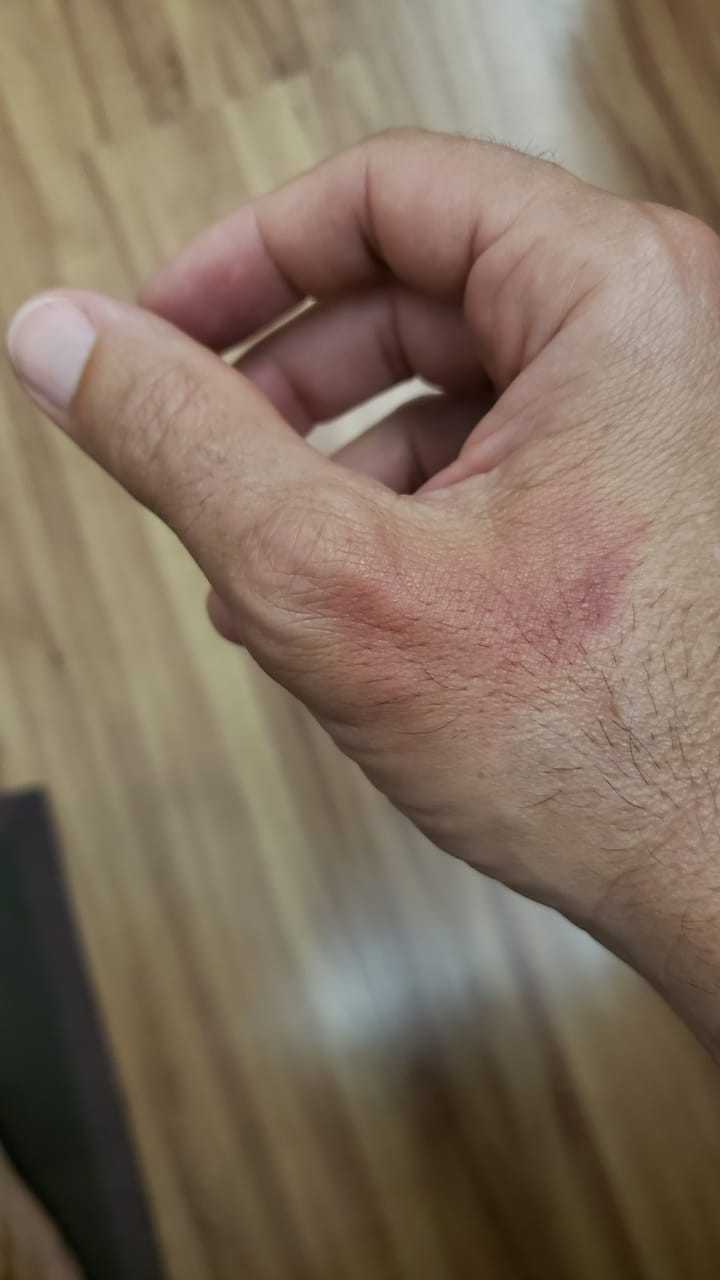 'Fogo invisível' queima a mão de jornalista que usou álcool em gel
