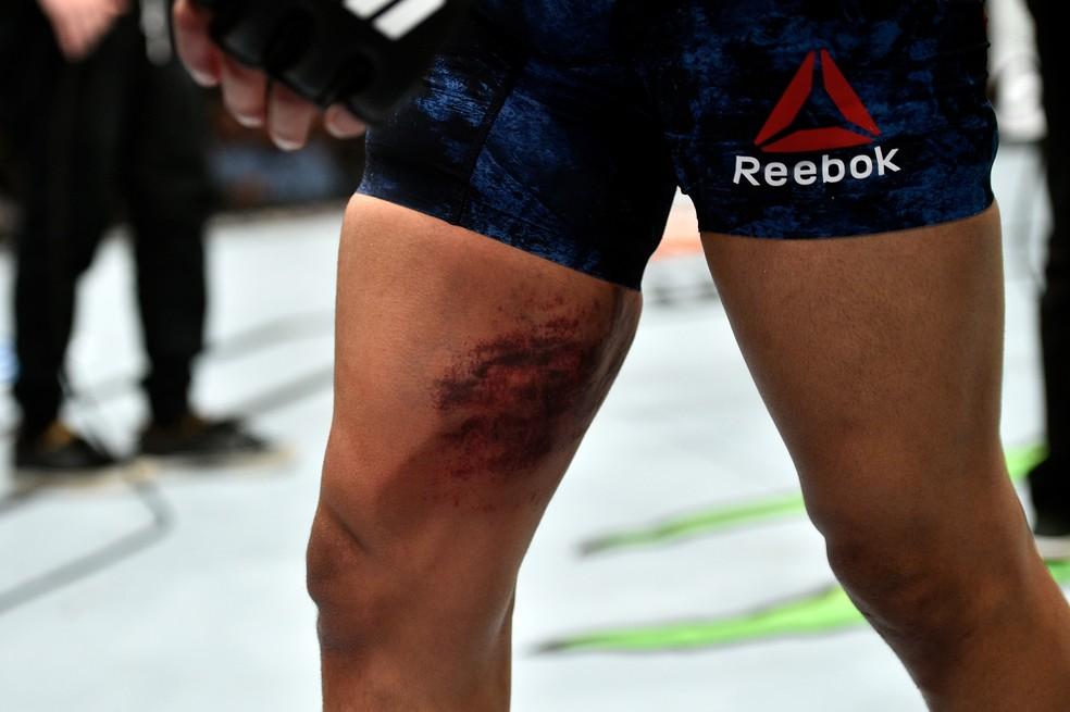 Coxa de Matthew Lopez castigada por Raphael Assunção ao longo de quase três rounds (Foto: Getty Images)