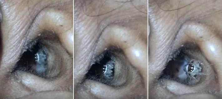 Aranha sai do ouvido direito de paciente na Índia