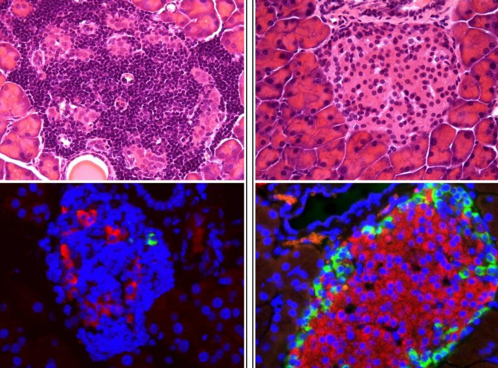 No canto acima à esquerda, célula sem tratamento é infiltrada por células do sistema imune; já a célula do lado direito, está sob ação do fármaco e tem diminuída as células do sistema imune (pontos escuros). Abaixo, no canto inferior esquerdo, está célula sem a terapia; já no lado inferior à direita, nota-se maior presença de células produtoras de insulina ( pontos em vermelho) (Foto: NADIA COBO-VUILLEUMIER ET AL)