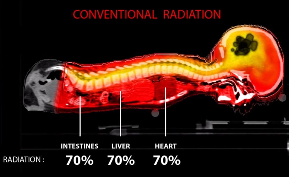 Esquema mostra a radiação recebida pelo intestino, fígado e coração no tratamento convencional de um meduloblastoma, câncer de cérebro comum em crianças . Segundo o especialista Arthur Rosa, a porcentagem de radiação recebida vai depender do tamanho da criança (Foto: Reprodução/Photo Beam Therapy )