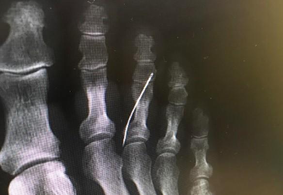 Radiografia exibe a agulha no interior do pé da paciente (Foto: Reprodução)