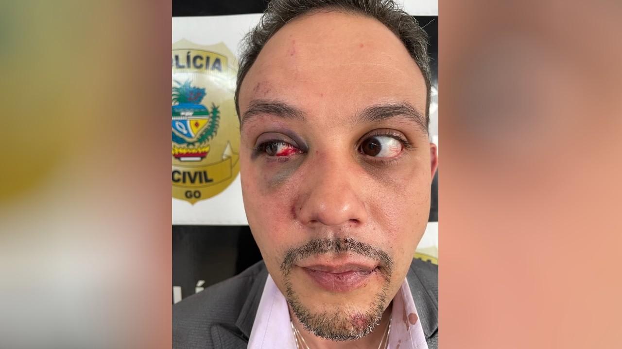 Advogado filmado sendo agredido em calçada se diz aliviado com prisão de PM acusado de torturá-lo: 'Espero a punição exemplar'