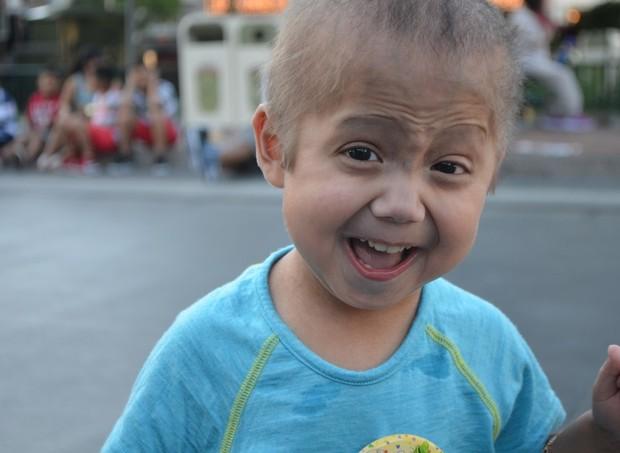 Enzo, de 6 anos, tem uma condição genética rara que o faz envelhecer antes da hora (Foto: Reprodução/Team Enzo Progeria)