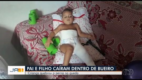 Bebê cai em bueiro sem tampa e quebra a perna, em Goiânia