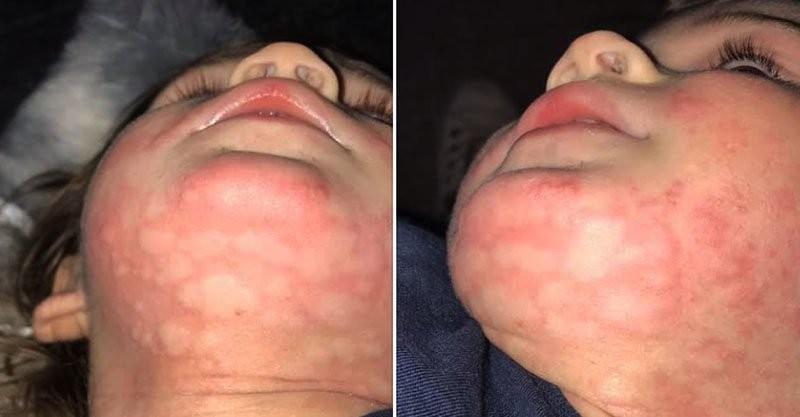 Menino com alergia severa (Foto: Reprodução Facebook)