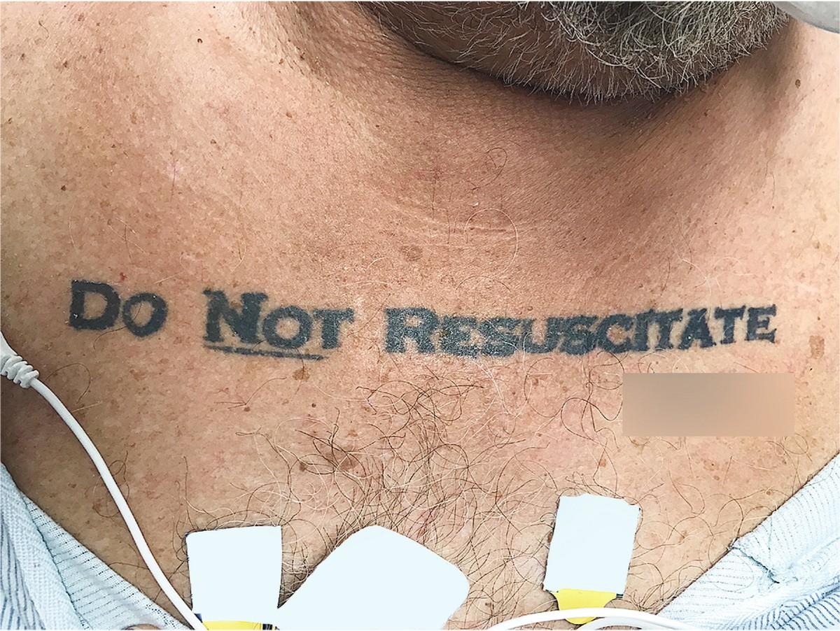 Homem com tatuagem 'não ressuscite' chega inconsciente a hospital e deixa médicos em dúvida