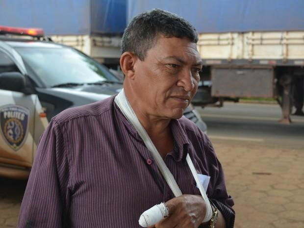 Motorista José machucou o dedo durante troca de pneu, após assalto (Foto: Ricardo Araújo/ Rede Amazônica)