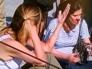 Câmera cai e deixa 2 mulheres feridas no Parque Olímpico (Foto: G1)