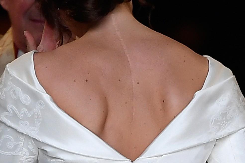Princesa Eugenie quis deixar cicatriz à mostra no dia de seu casamento — Foto: Toby Melville/ Pool/ AFP