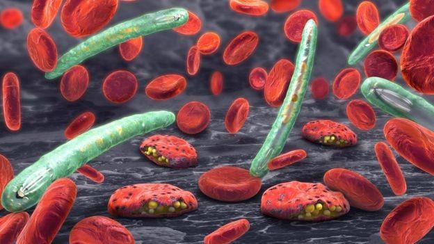 Malária é causada em humanos por pelo menos cinco espécies do parasita plasmodium (Foto: Getty Images via BBC News Brasil)