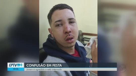 Jovem espancado em Descalvado, SP, recebe alta após passar por três cirurgias