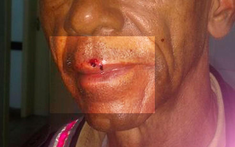 Boca do agente de trânsito teve sangramento (Foto: Astra,/Divulgação)