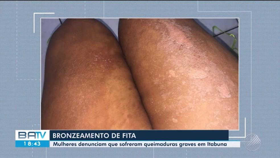Dez mulheres denunciam ter sofrido queimaduras após serviço de bronzeamento natural com fitas em clínica — Foto: Reprodução/TV Santa Cruz
