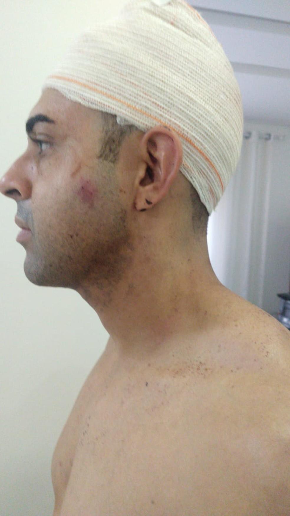 Thiago Abreu levou 60 pontos na cabeça apos ser atacado por motorista de aplicativo. — Foto: Thiago Abreu/Arquivo pessoal
