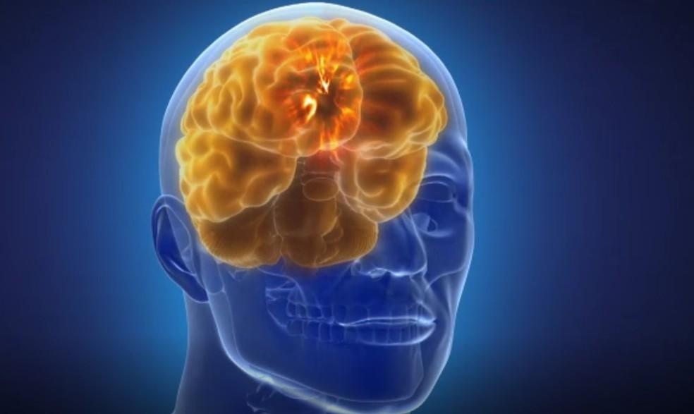 Aparelho monitora a atividade cerebral em 128 pontos ao mesmo tempo, o que o diferencia de dispositivos existentes hoje — Foto: Reprodução/BBC