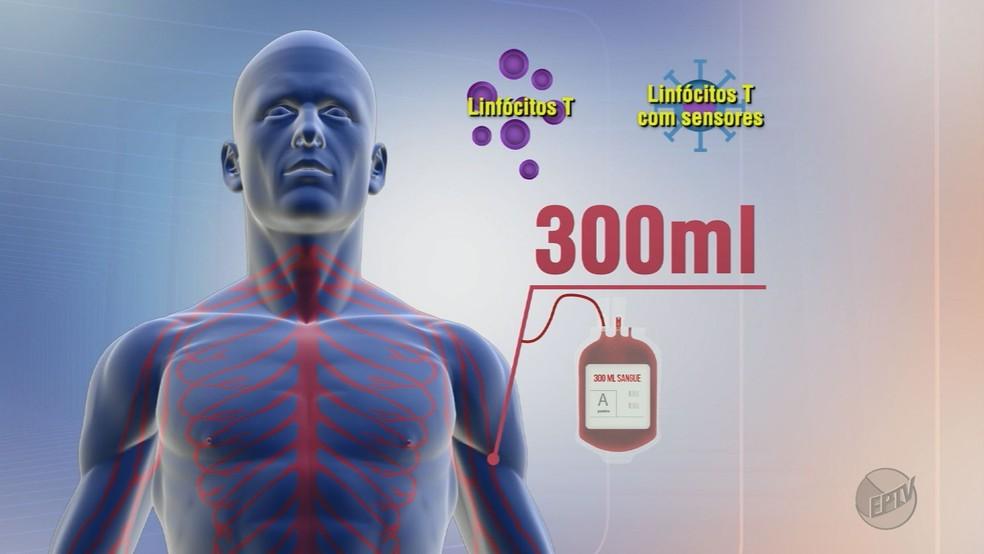 Método contra leucemia estudado pela USP de Ribeirão Preto modifica células extraídas do sangue do paciente (Foto: Reprodução/EPTV)