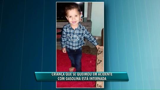 Criança de três anos sofre queimaduras provocadas por gasolina