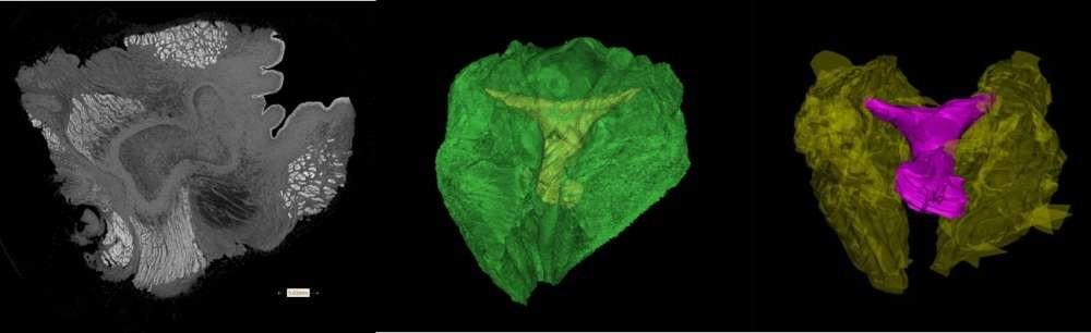 Tomografia computadorizada do clitóris do golfinho-nariz-de-garrafa. O tecido erétil (no centro) é cercado por músculos densos e tecido conjuntivo. (MEIO) Reconstrução computadorizada do clitóris do golfinho-nariz-de-garrafa mostrando o tecido erétil do clitóris (amarelo) embutido no músculo circundante e tecido conjuntivo em verde. (Direita) Reconstrução computadorizada do clitóris do golfinho-nariz-de-garrafa, que segundo os pesquisadores é notavelmente semelhante ao clitóris humano em sua estrutura e forma (Foto: Dara Orbach, Mount Holyoke College)